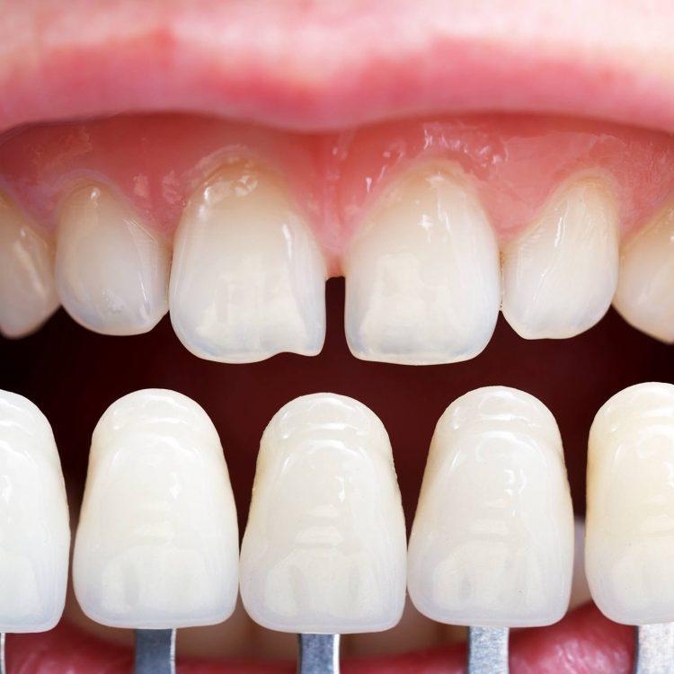 Iceberg Dent - Your partner for absolute dental health