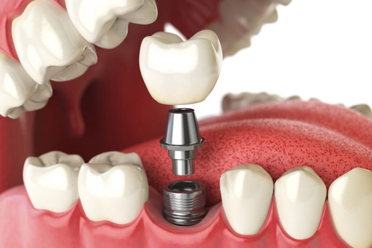 How much are dental implants in Moldova?