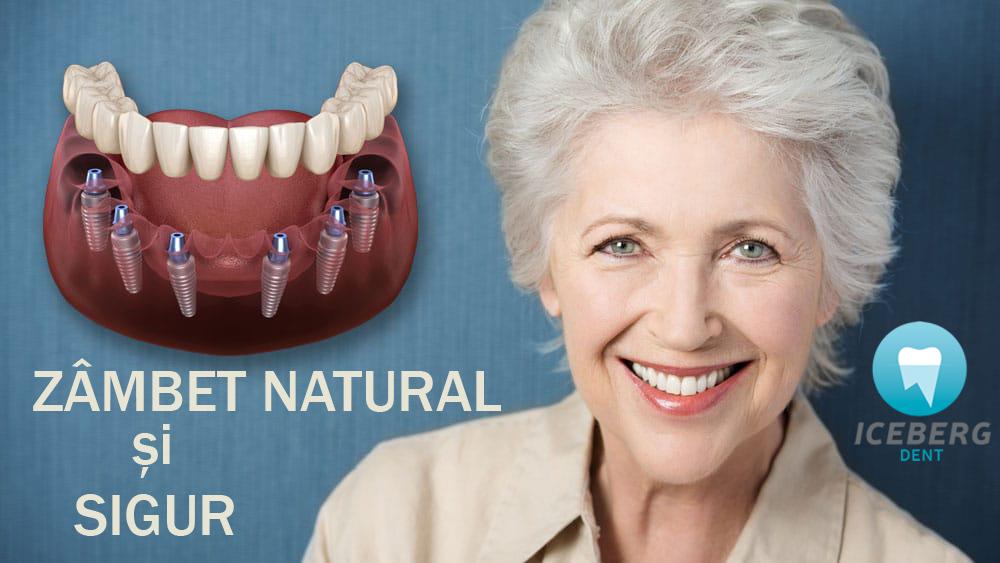 Cât costă implanturile dentare în Moldova?