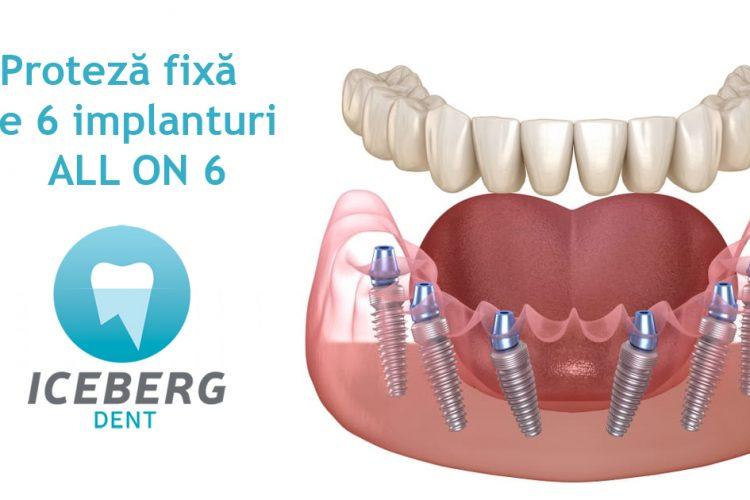 proteză fixă pe 6 implanturi bio