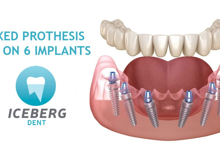 fixed prothesis on 6 bio implants